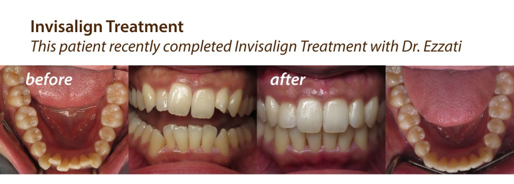 before and after Invisalign treatment at Olympic Village Dental