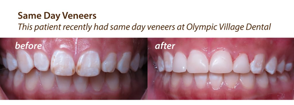Before and After Same Day Veneers at Olympic Village Dental